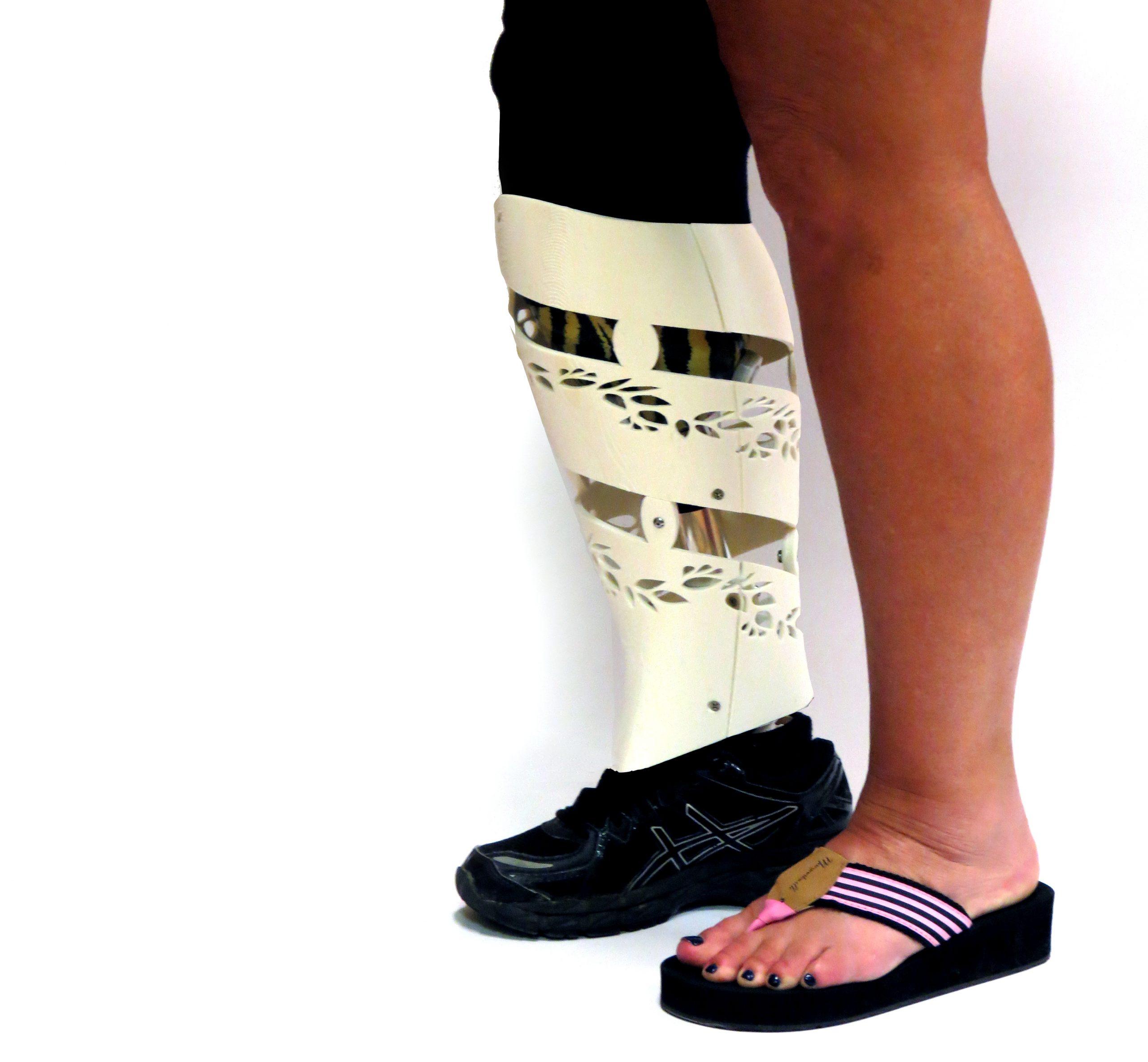 Prosthetic Skins